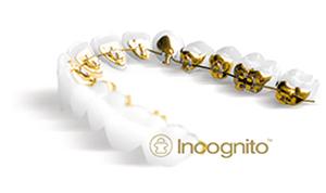 インコグニトの写真
